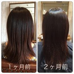 髪の治療を始めて3ヶ月の途中経過