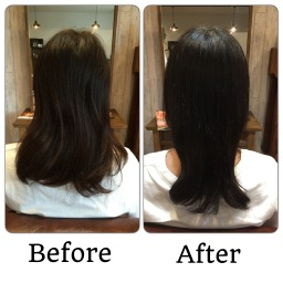 髪の治療 1回目